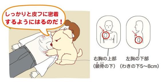 JapanDefibrilatorErklärung
